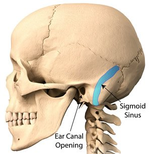 Pulsatile Tinnitus Caused by Sigmoid Sinus Dehiscence or