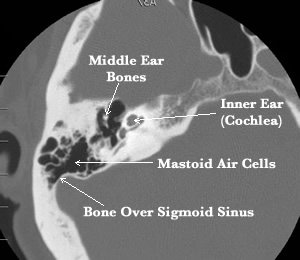 CT of normal sigmoid sinus covering