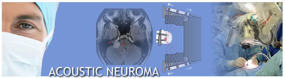 Ear Institute of Chicago_Acoustic Neuroma Banner